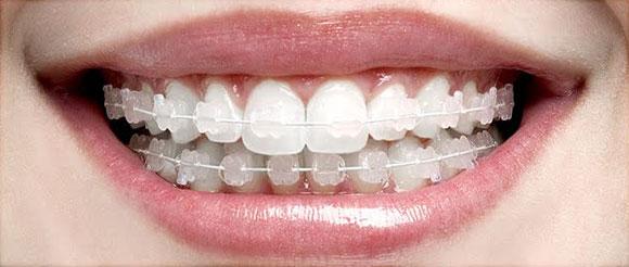 ortodontia-aparelho-estetico