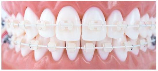 ortodontia-estetica-21
