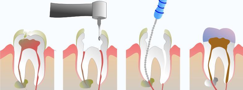 tratamento_endodontia
